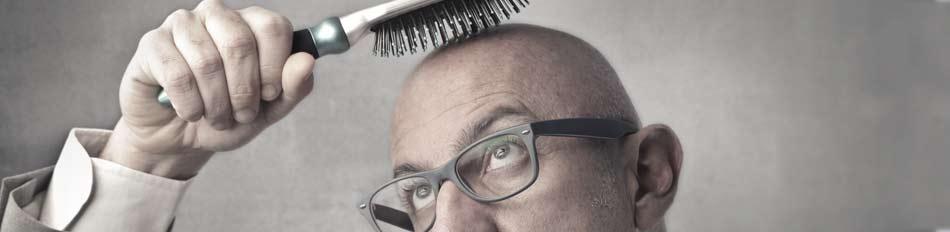 perdita capelli e rimedi alla caduta